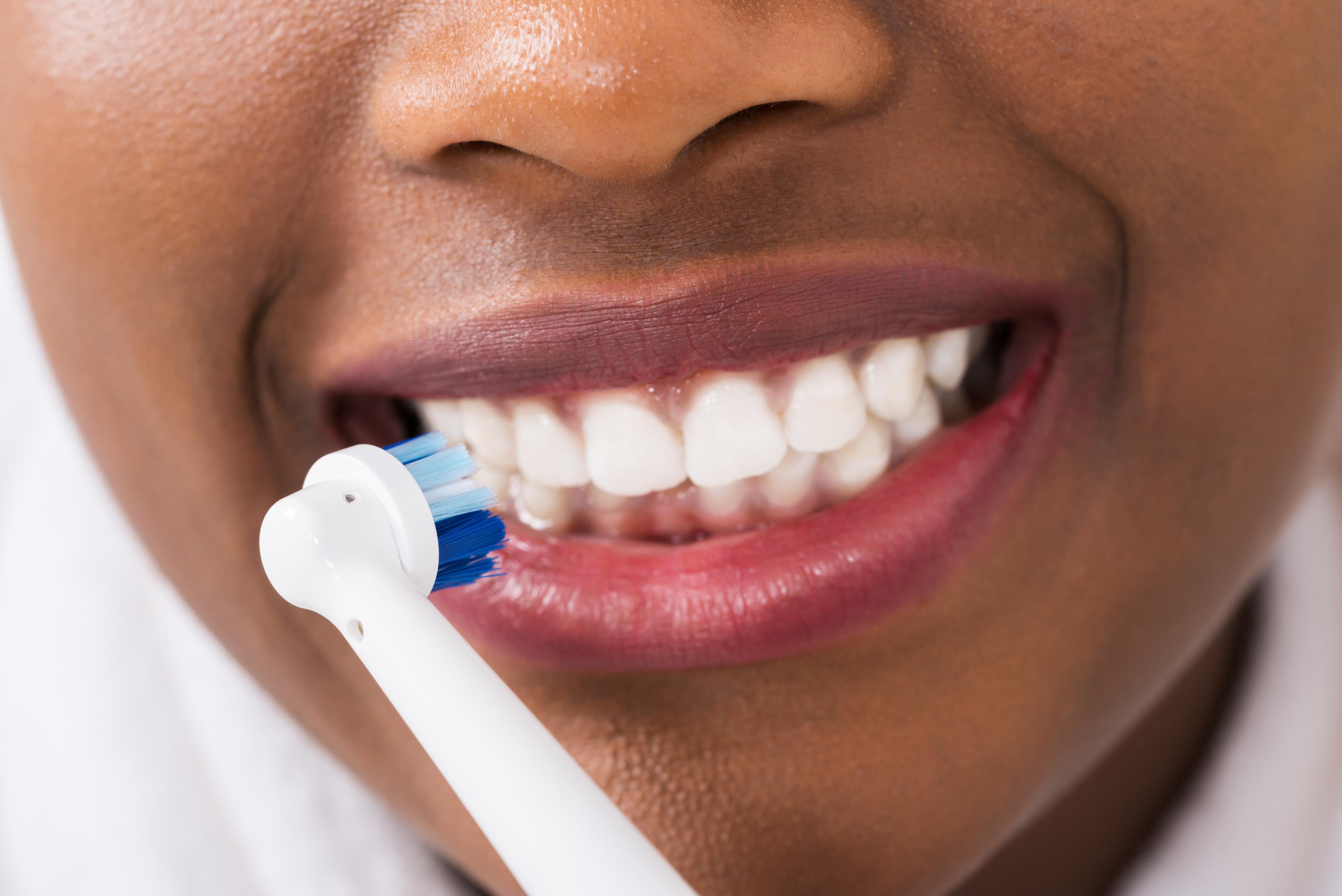 tandblekning laser nackdelar