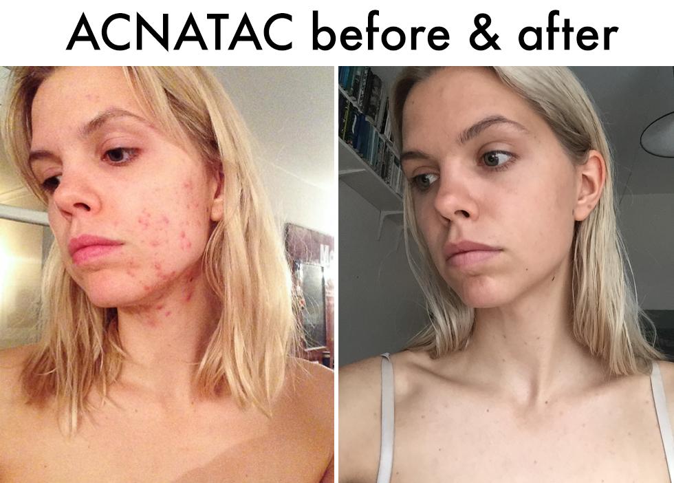 receptfri acne medicin